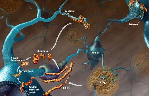 Kannabidiol (CBD) zwalcza zapalenia i agresywne postaci raka, THCLand.pl